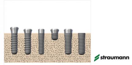 Straumann führt Lifetime Plus Garantie für Roxolid-Implantate ein