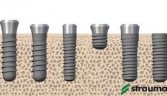 Roxolid – ein Implantatmaterial erobert den Markt