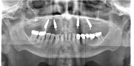 Full-Arch-Sofortversorgung im Oberkiefer auf vier Implantaten