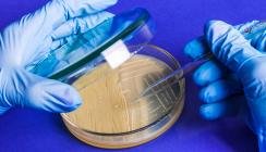 Streptococcus mutans als Ursache für systemische Erkrankung
