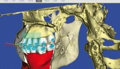 SureSmile® 7.0 – Digitale kieferorthopädische Behandlung