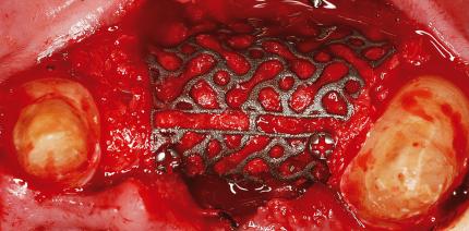 CAD/CAM-Titangerüst für 3-D-Knochenregeneration