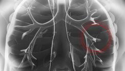 Prozess um inhalierten Zahnbohrer in der Lunge