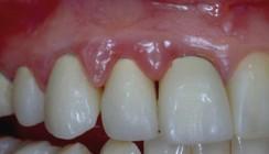 Minimalinvasive Ästhetik durch adhäsive Zahnheilkunde