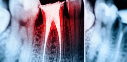Tod nach Wurzelbehandlung: Junger Patient stirbt in Zahnarztpraxis
