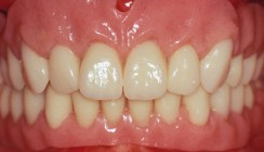 Typgerechte Zahnaufstellung in der Total- und Hybridprothetik