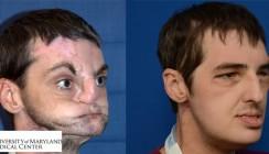 Rekord-OP: Amerikaner erhält nach Schussverletzung neues Gesicht