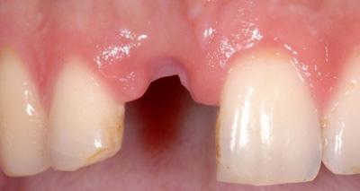 Implantation im Frontzahnbereich