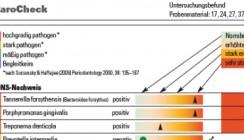 Bakterien als früher Marker für Parodontitis