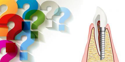 Warum wird in Deutschland so wenig implantiert? – Leserumfrage