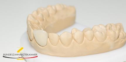 Abgebrochenes Veneer-Stück mit zum Zahnarzt bringen