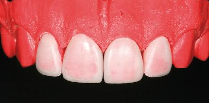 Minimalinvasive Veneerversorgung mit keramisch basiertem Füllungsmaterial