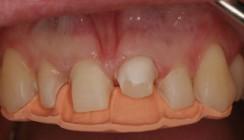 Korrektur von Zahnform und Zahnstellung mit keramischen Veneers