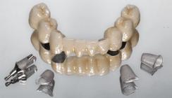Festsitzender Zahnersatz: Lebensqualität bei alternden Patienten