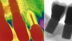 Vergleich von Knochenersatzmaterialien