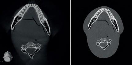 Digitale Volumentomografie in der Implantologie