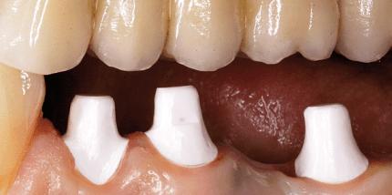 Paradigmenwechsel in der implantologischen Behandlung