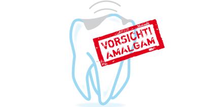 Vorerst kein Phase-out von Amalgam