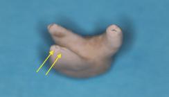 Endodontischer Erfolg durch Wissen um die Wurzelkanalanatomie