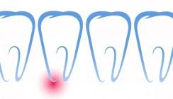 Vertikale Wurzelfrakturen nach endodontischen Therapien
