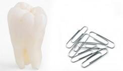 Pfusch an der Wurzel: Zahnarzt operiert mit Büroklammern