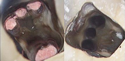 Der dritte mesiale Wurzelkanal im zweiten Unterkiefermolaren