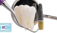 Wurzelkanalbehandlung oder doch besser ein Implantat?