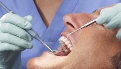 Zwei Wochen lang die Zähne nicht geputzt: Ein Selbstversuch