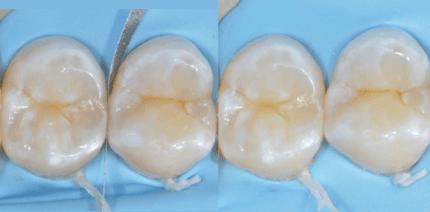 Der Zahnarzt ist ein Dienstleister und kein Künstler