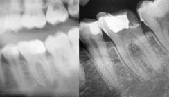 Zahnerhalt bei primär endodontischer Läsion mit apikaler Parodontitis