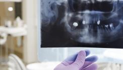 Patienten in Bayern zahlen am meisten für Zahnersatz zu