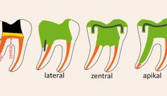 Vertikale Zahnfrakturen: Keinesfalls Ende eines Zahnlebens