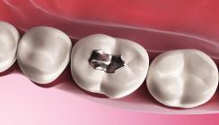 Barmer GEK Zahnreport 2015: Zahnfüllungen halten oft nicht lang