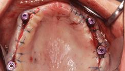Implantatprothetische Versorgung des zahnlosen Oberkiefers