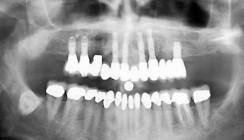 Grundlegende Parameter der Behandlungsplanung beim zahnlosen OK