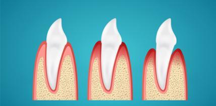 Natürliche Zahnschmelzabnutzung