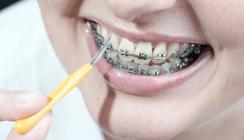 Bei fester Spange nach jedem Essen Zähne putzen