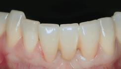 Ästhetische Restauration der Unterkieferfront nach Zahnverlust