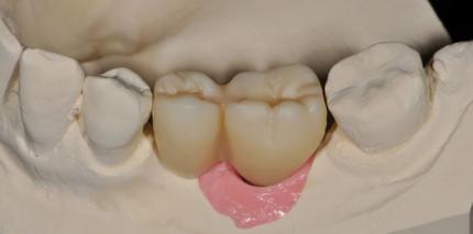 Monolithisches Zirkonoxid auf Implantaten