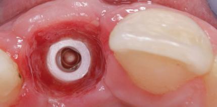 Ästhetische Zahnversorgung auf zweiteiligen Zirkonoxidimplantaten