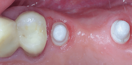 Sofortimplantation von ein- und zweiteiligen Keramikimplantaten
