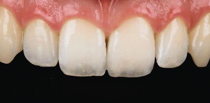 Minimalinvasive Keramikversorgung einer Kronenfraktur