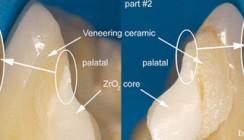 Belastbarkeit von Keramiken – Ursachen für Frakturverluste