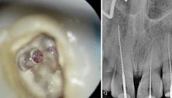 Die endodontische Zugangskavität