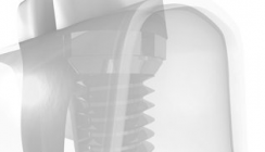 Keramikimplantate – metallfrei und ästhetisch