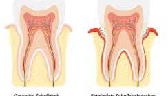 Weil jeder Zahn zählt: Parodontitis behandeln