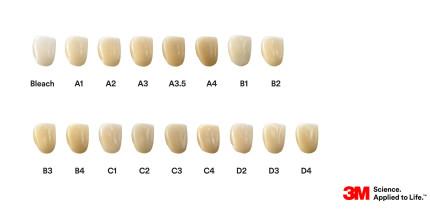 Ästhetisches Zirkoniumoxid in 17 Zahnfarben erhältlich!