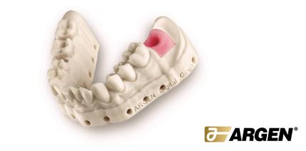 3D-Print bei Argen Digital: Modelle, Stümpfe und Gingiva-Masken