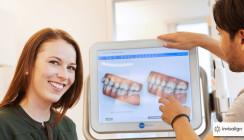 Align Technology verzeichnet den einmillionsten Invisalign®-Patienten