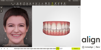 """Invisalign Go System: Launch des ClinCheck """"In-Face"""" Visualisierungstools"""